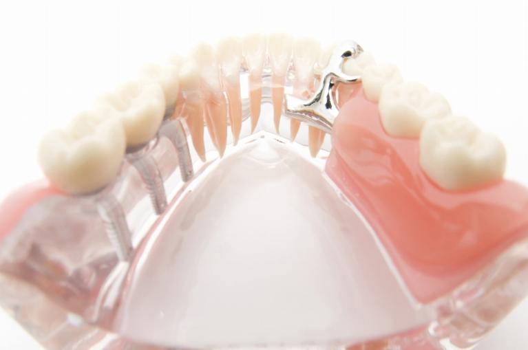 入れ歯とインプラントの違い